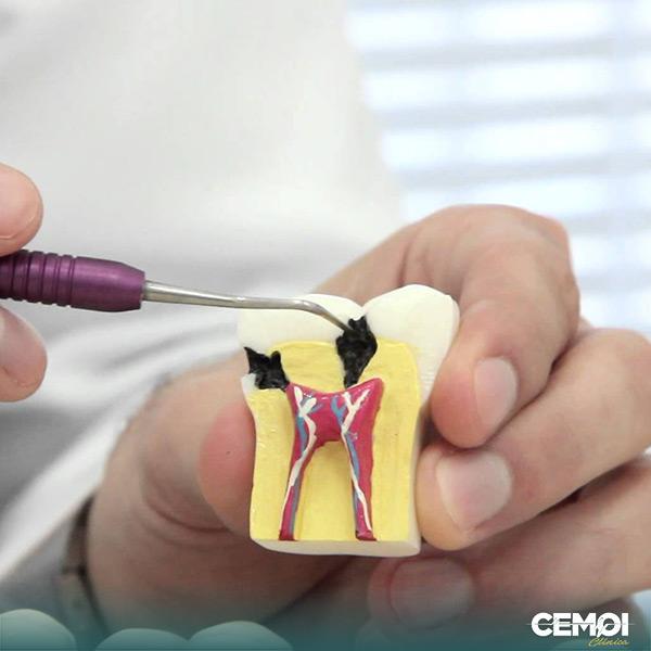 O que é endodontia e os riscos para saúde. A Endodontia é a especialidade da Odontologia que diagnostica e trata dos problemas da polpa dentária. Conheça nossa clínica odontológica em Brasília CEMOI